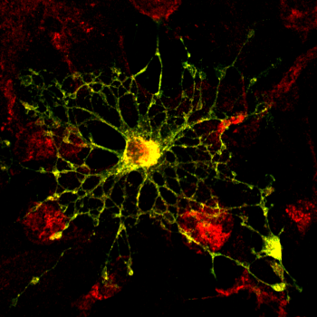 Figure: Confocal visualization of central protein in myelin (PLP) in cultivated oligodendrocytes with an EGFP-tag (in yello-green) and an intracellular marker (in red).