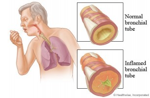 Figure 2 - Bronchitis Lung